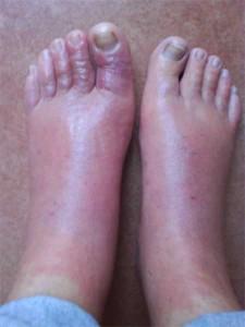 Los tipos de los hongos en los pies el tratamiento